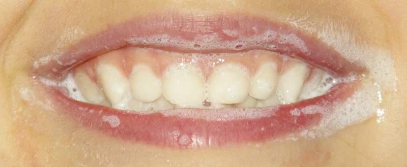 Zähneputzen leicht gemacht