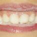 Kleinen Kindern die Zähne putzen - so klappt's